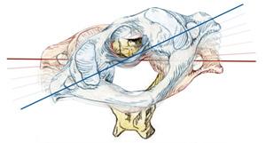 Upper Cervical Chiropractic