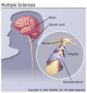 multiple-sclerosis-natural-solution